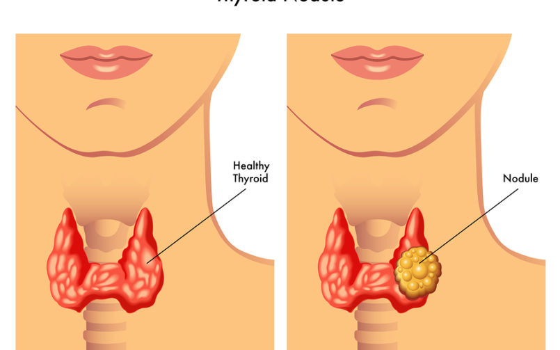 Understanding Thyroid Nodules