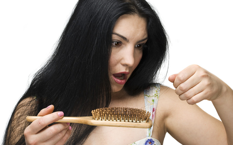 Common Cause of Alopecia in Women